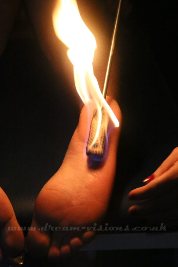 fire on a foot